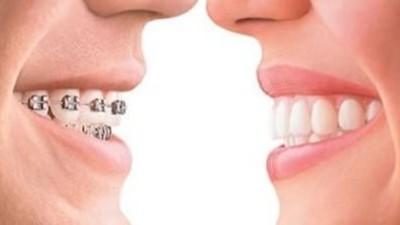 口腔正畸矫正需要日本NSK超高速气动打磨机进行修复